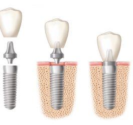 implantologie-dentaire-marseille